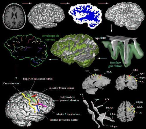 Neuroanatomie Morphologie