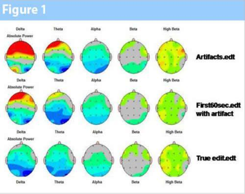 neurofeedback eeg